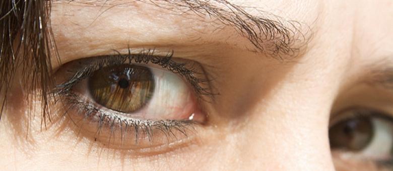 Čo prezradia vaše oči? Toto odhalil výskum